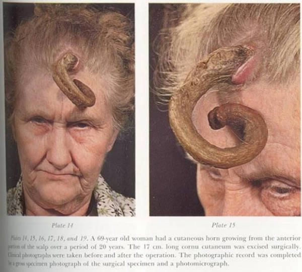 8 People With Horns