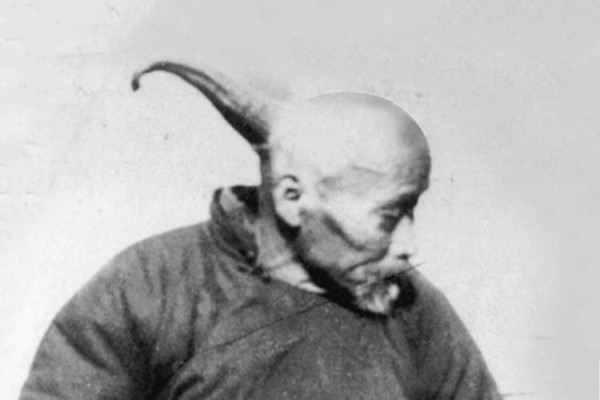 The Extraordinary Case Of Wang The Human Unicorn